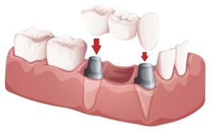 can dental implants support a bridge