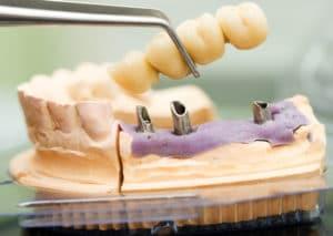 how-dental-implants-make-for-better-bridges