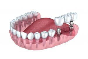 Why Is Titanium Great For Implants?
