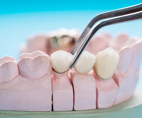 Dental bridges in austin tx